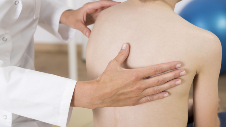 กายภาพบำบัดกับกระดูกสันหลังคด